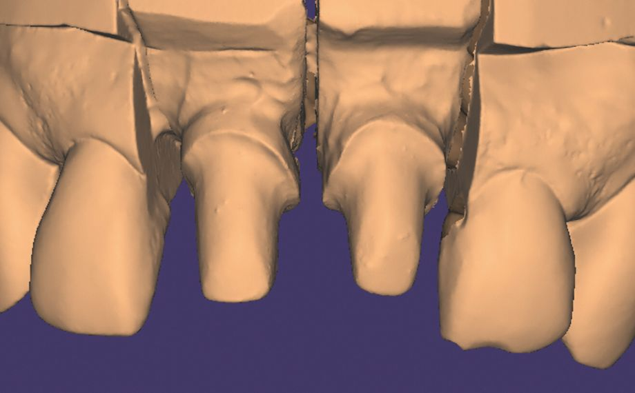 Fig. 6 The master model produced was digitalized using the lab scanner.
