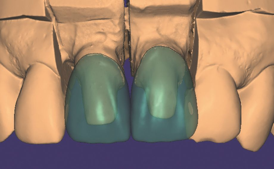 Fig. 7 In the exocad CAD software, crowns were constructed on stumps 11 and 21.