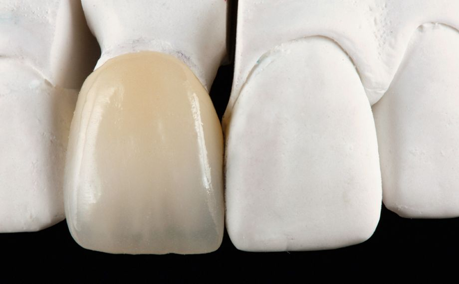 Fig. 3 After finishing and minimal cut-back, the crown was individualized incisally with VITA VM 11.