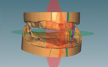 Fig. 3 The CAD software Ceramill Mind guided through the virtual model analysis according to TiF®.