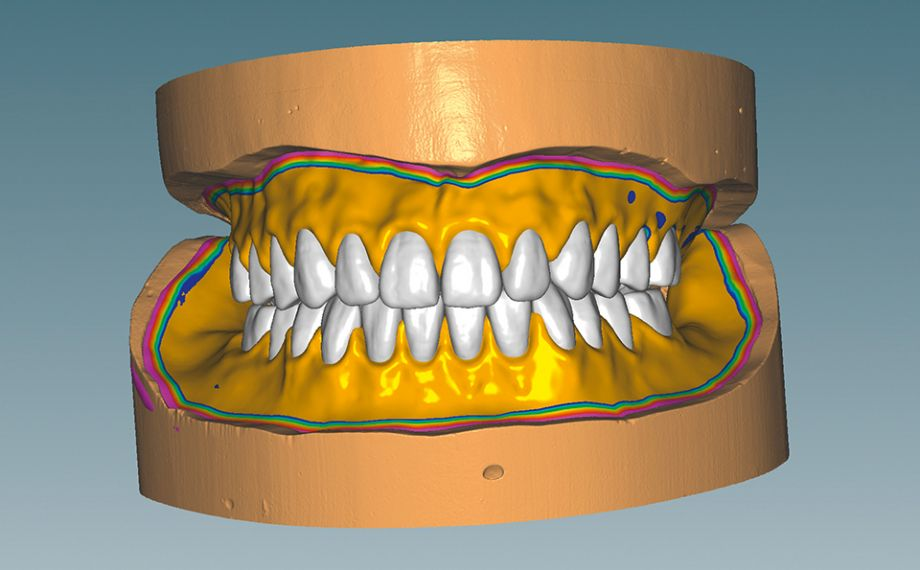 Fig. 6 Afterwards, the functional edges could be defined and the denture bases could be designed.