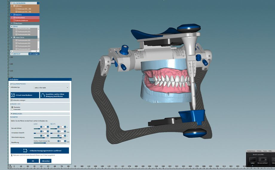Fig. 8 Finally, the dynamic occlusion was checked in the virtual articulator.