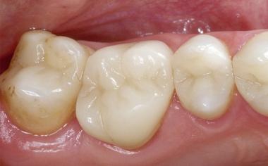 Fig. 1d La situación de partida clínica inmediatamente después del cementado completamente adhesivo.