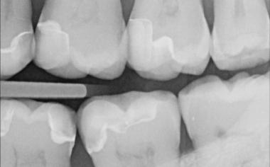 Fig. 2a Inlay intacto (om) en el diente 17 al cabo de 14 años.