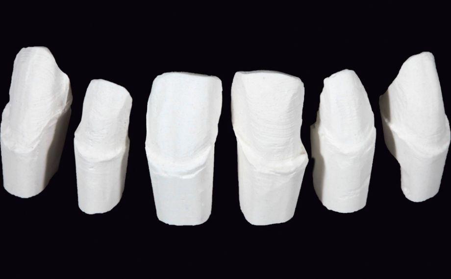 Fig. 3 Sobre la base del modelo maestro se pudieron confeccionar muñones pirorresistentes.