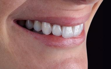 Fig. 9 Se configuró la arcada dentaria conforme a las reglas de la estética.