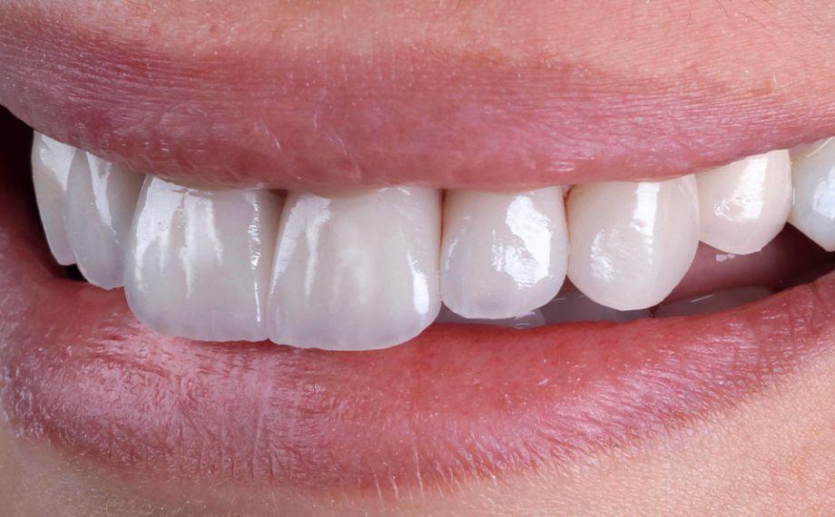 Fig. 10 Los contornos de los labios y de los bordes incisales armonizaban entre sí.