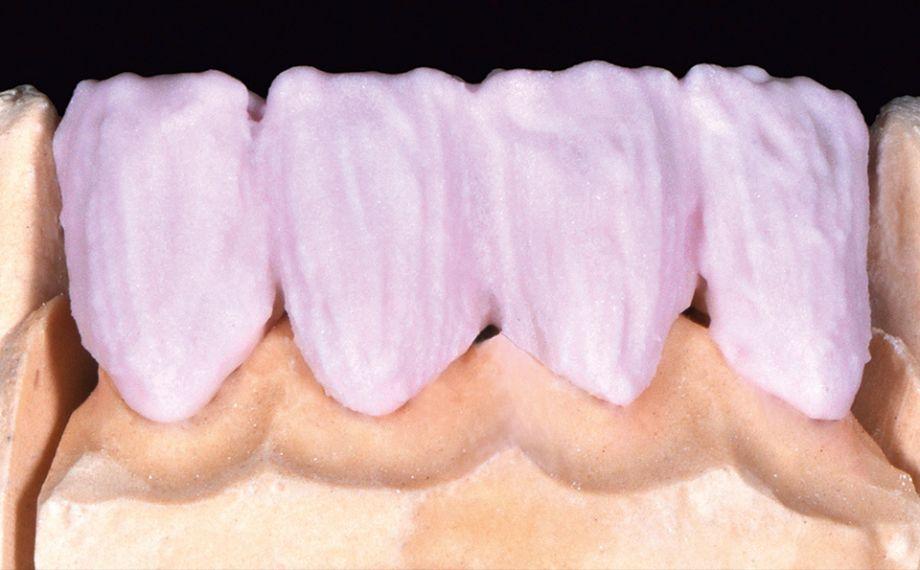 Fig. 5 La intensificación cervical con A 3.5, en la zona lateral con A 3.5 en combinación con un poco de FLUO INTENSE sand.