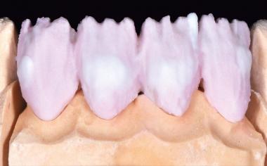 Fig. 6 La aplicación de cerámica central de A3 mezclando OPAL TRANSLUCENT opal-neutral.