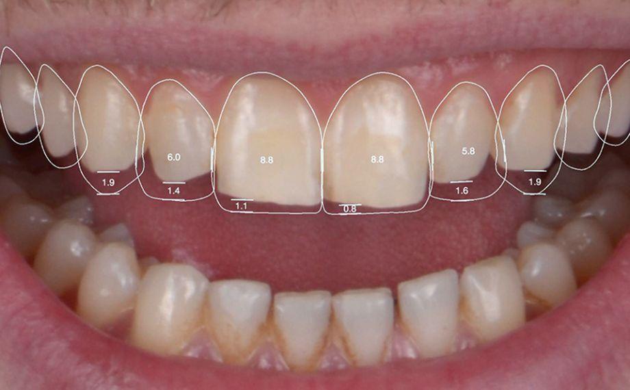 Fig. 3 En una aplicación se modificaron virtualmente las proporciones dentales.