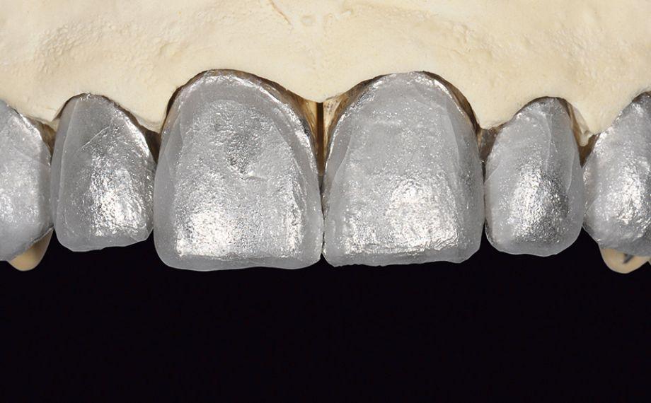 Fig. 11 El modelo maestro con lámina de platino sobre los muñones.