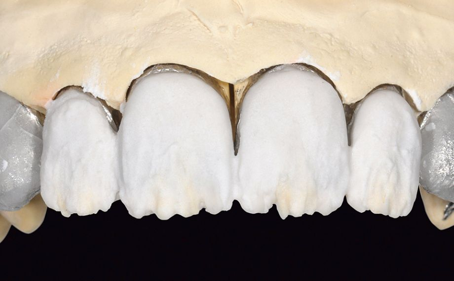 Fig. 12 La zona de dentina se estratificó con LUMINARY 1 (blanco) y DENTINE 1M1.