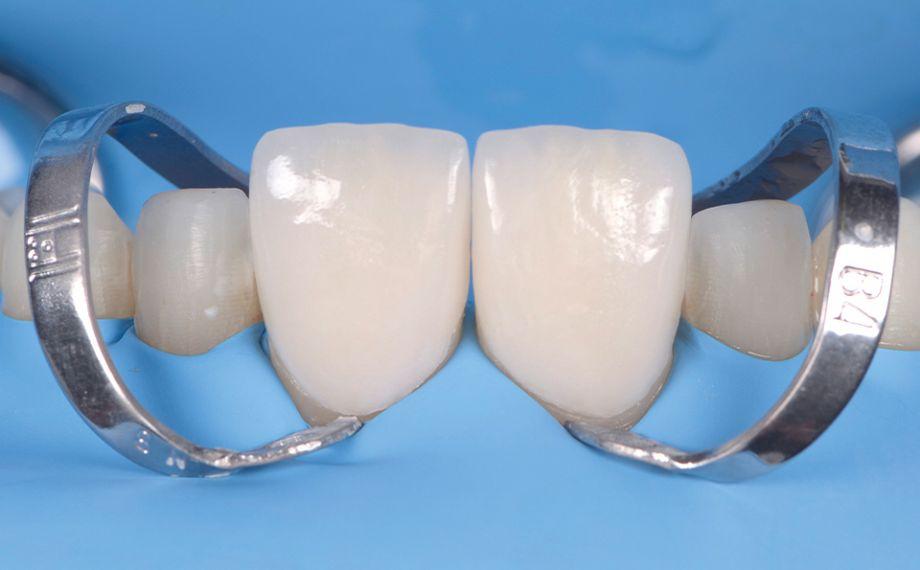 Fig. 14 La prueba final en boca de las carillas en los dientes 11 y 21.