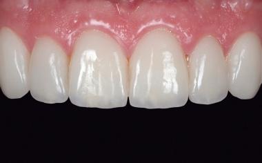 Fig. 15 La situación clínica al cabo de seis semanas. Las papilas se mostraron completamente regeneradas.