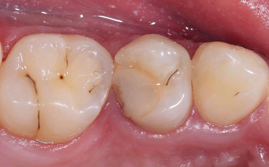 Fig. 1 La obturación de composite insuficiente en el diente 14 (od) había provocado inflamaciones en el espacio interdental.