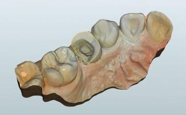 Fig. 4 Sobre la base del escaneo intraoral se confeccionó un modelo maestro para el diseño.