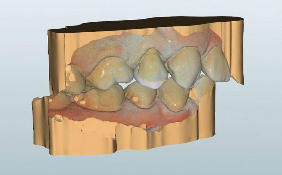 Fig. 5 Vista vestibular del diseño virtual terminado de la restauración con endocoronas.