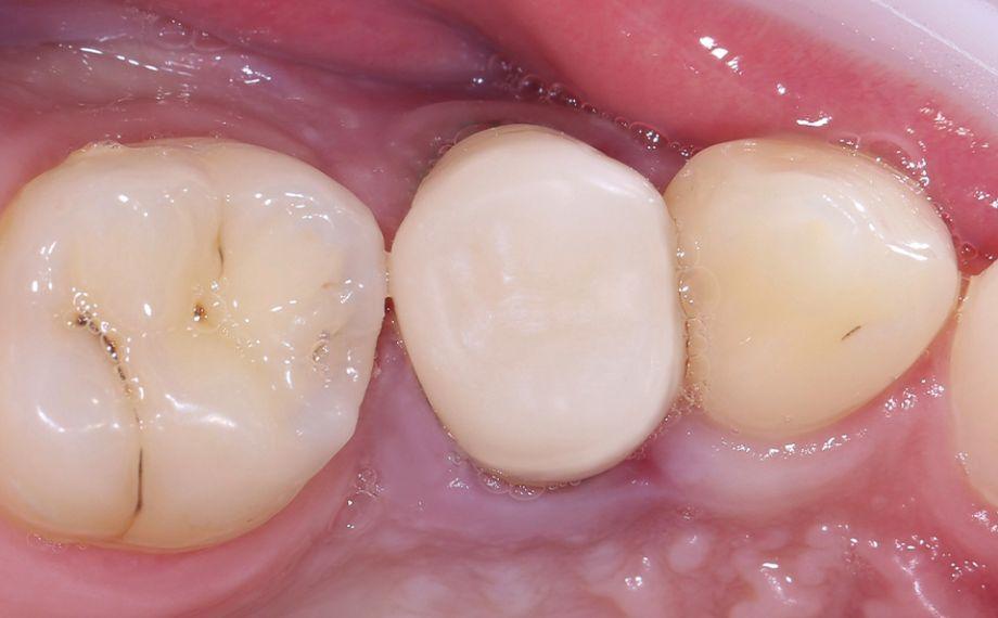 Fig. 9 La restauración confeccionada mediante CAD/ CAM, durante la prueba clínica en boca tras el acabado.