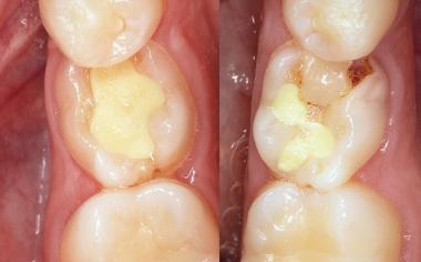 SITUACIÓN DE PARTIDA: la situación de partida con dientes de leche persistentes no conservables en las regiones 34 y 35.