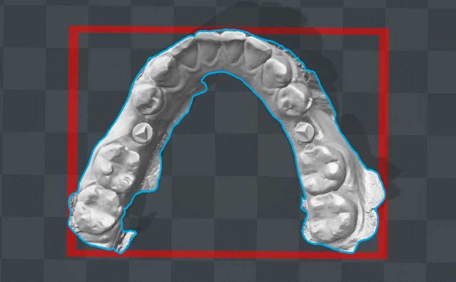 Fig. 4 El modelo virtual del maxilar inferior fue la base para la confección aditiva de un modelo de control.