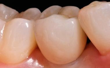 Fig. 11 También la corona de cerámica de feldespato en el diente 35 presentaba un aspecto totalmente natural.