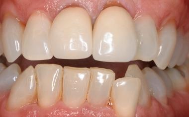 SITUACIÓN DE PARTIDA: la situación de partida con coronas metalocerámicas insuficientes y de aspecto apagado en los dientes 11 y 21.