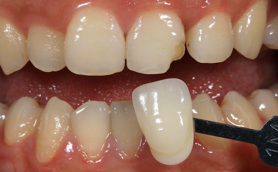 Fig. 3 Mediante la guía VITA Linearguide 3D-MASTER se determinó sistemáticamente el color dental en dos pasos.