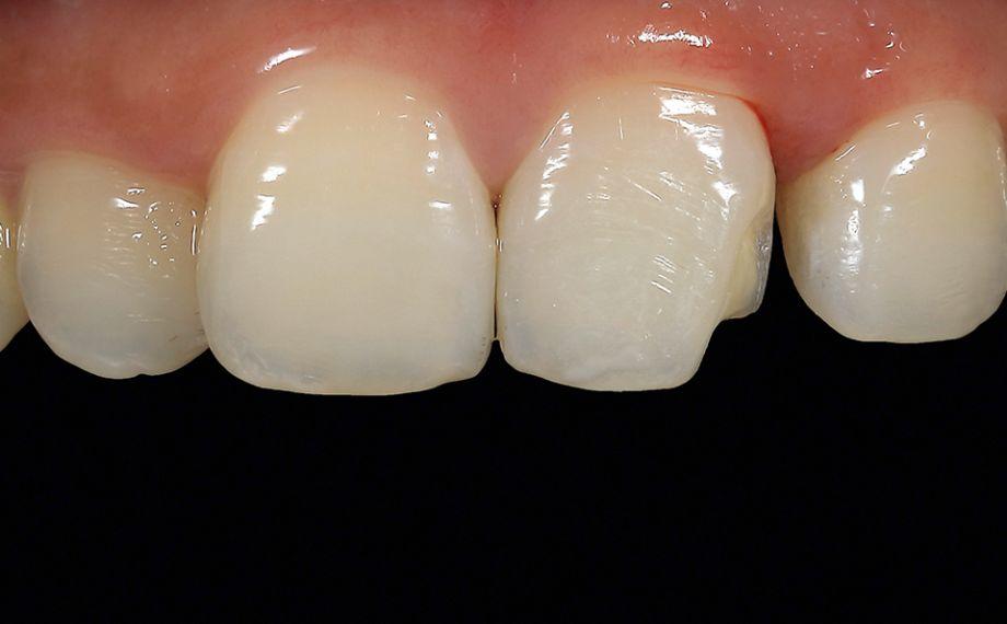 Fig. 4 Se eliminó la caries bajo anestesia local y se biselaron mínimamente las zonas marginales del esmalte.