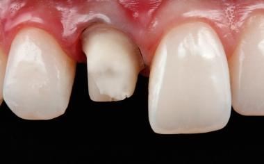 Fig. 1 Se preparó el diente 11 para una nueva restauración definitiva con una corona completa.