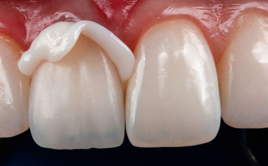 Fig. 9 La corona fijada de forma completamente adhesiva, antes de la eliminación del exceso de composite.
