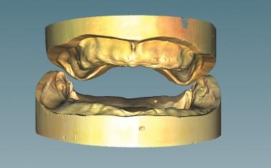 Fig. 2 El escaneo de ambos modelos de trabajo en relación intermaxilar conforme a la relación axial en el articulador.