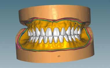 Fig. 6 A continuación se definieron los bordes funcionales y se configuraron las bases de prótesis.