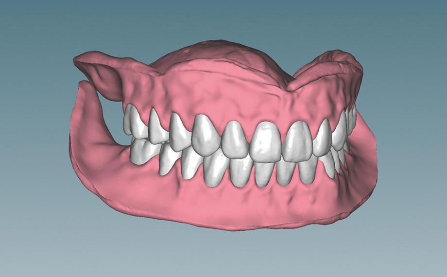 Fig. 7 Las restauraciones protésicas completas ya diseñadas, en la posición de mordida final.