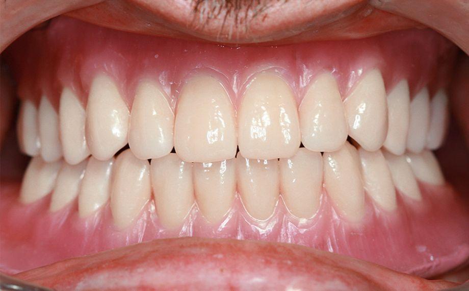 Fig. 11 Durante la prueba clínica en boca no fueron necesarias modificaciones oclusales. El resultado estético fue muy satisfactorio.