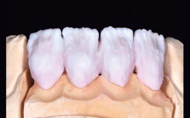 Ill. 7 Avant la première cuisson dentinaire, la masse émail ENAMEL light a été ajoutée.