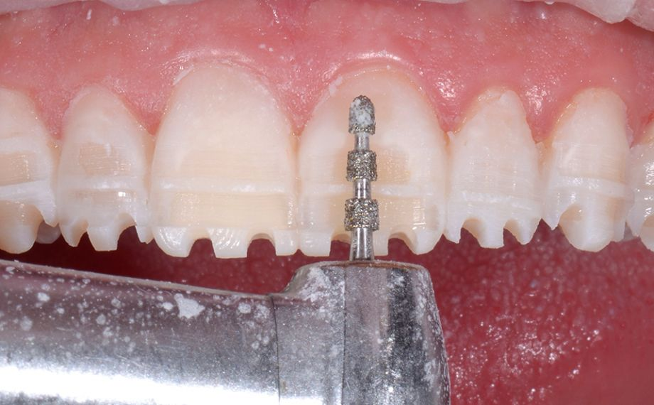 Ill. 8 Une préparation contrôlée de la maquette a permis un travail minimalement invasif.