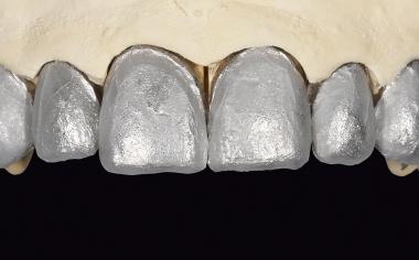 Ill. 11 Maître-modèle avec feuilles de platine sur les moignons.