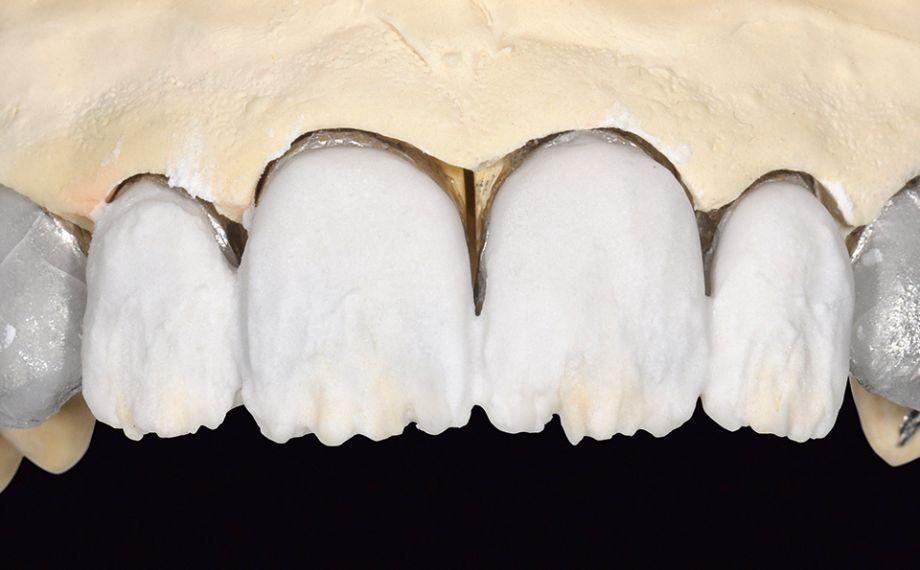 Ill. 12 La portion dentinaire a été stratifiée avec LUMINARY 1 (blanc) et DENTINE 1M1.