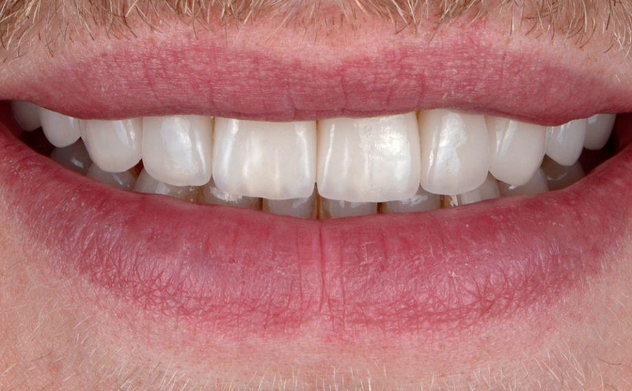 RÉSULTAT Le patient était enchanté de son nouveau sourire. Le bord incisif et le contour de la lèvre inférieure s'harmonisaient entre eux.