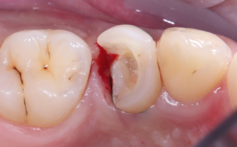 Ill. 2 Un saignement inflammatoire de la gencive au niveau de la boîte proximale est apparu après le retrait de l'ancienne obturation en composite.