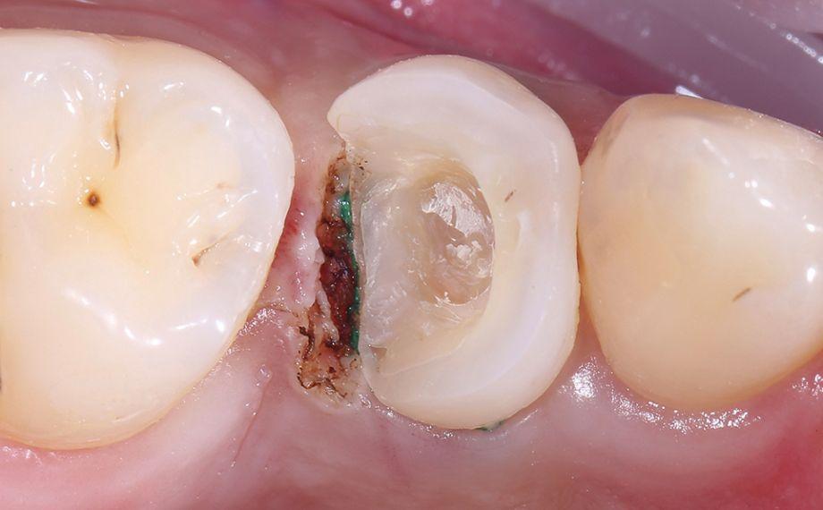 Ill. 3 Pour arrêter le saignement et rendre visibles toutes les surfaces, il a été procédé à une gingivectomie distale avec pose de fils de rétraction.