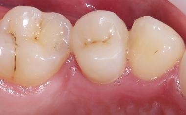 RÉSULTAT Grâce aux excellentes propriétés optiques, la reconstitution en VITA ENAMIC multiColor s'est intégrée tout à fait harmonieusement dans la substance dentaire naturelle.