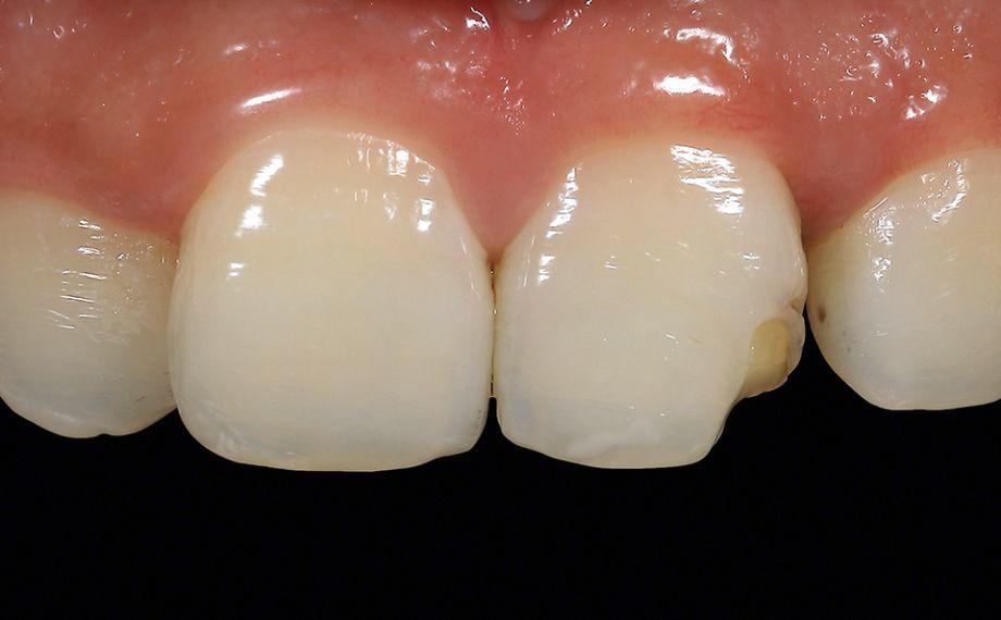 Ill. 2 Une carie secondaire s'était formée sous une reconstitution directe en composite, provoquant une fracture de l'obturation.