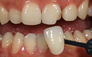 Ill. 3 La couleur de dent a été déterminée de façon systématique en deux étapes à l'aide du teintier VITA Linearguide 3D-MASTER.