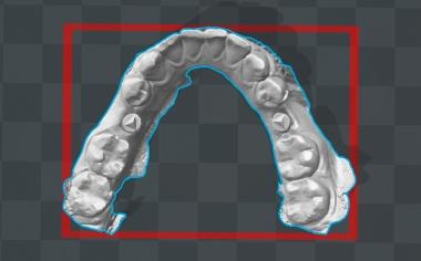 Ill. 4 Le modèle virtuel mandibulaire était la base pour la réalisation additive d'un modèle de contrôle.