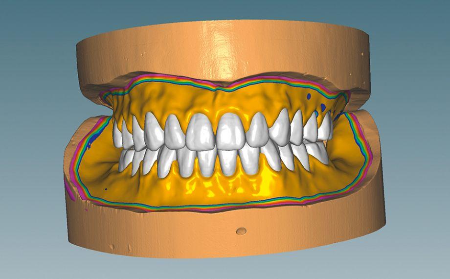 Ill. 6 Finalement, les bords fonctionnels ont été définis et les bases prothétiques ont été créées.