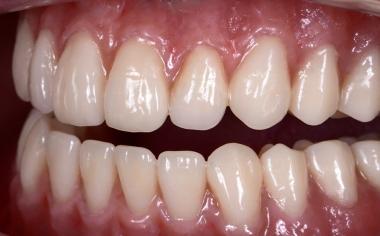 Ill. 13 L'anatomie muco-gingivale a été reproduite de façon naturelle avec le composite cosmétique VITA VM LC flow.
