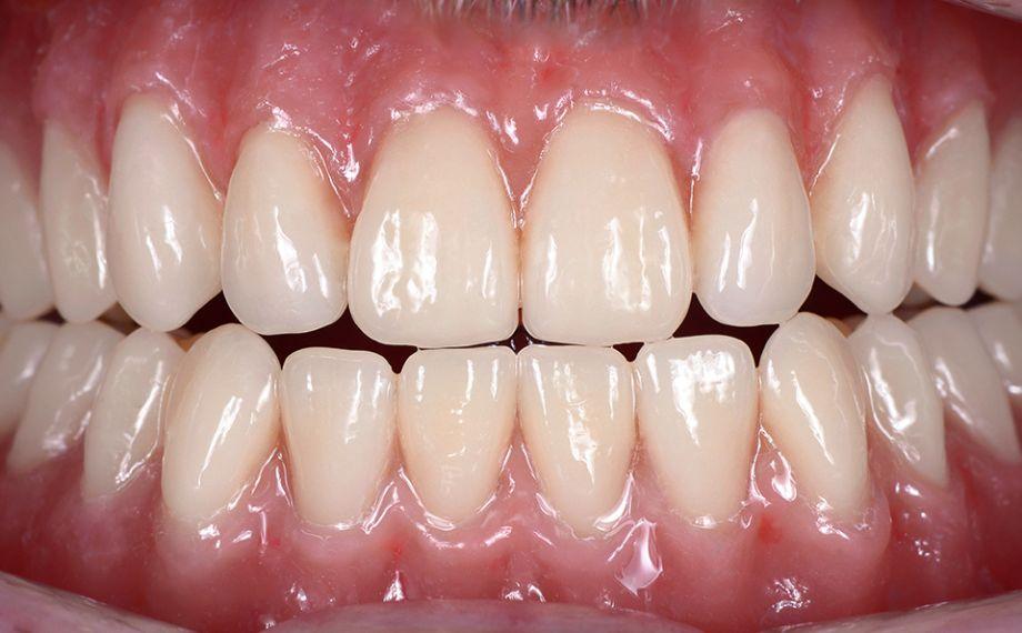 RESULTAT La prothèse totale définitive en bouche après une réalisation assistée par CFAO. La restauration avait un aspect complètement naturel et vivant.