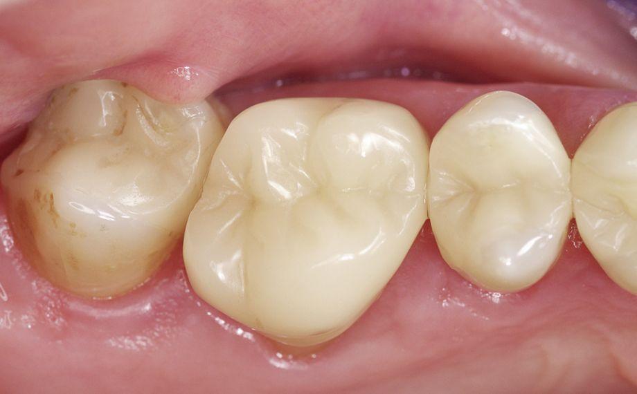 Fig. 1e Situazione della corona post-endodontica 17 anni dopo l'inserimento.