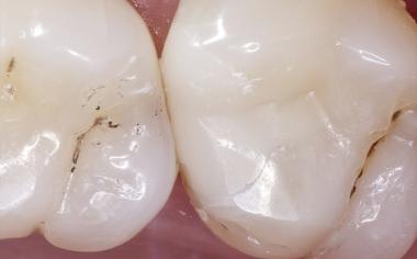 Fig. 2b Abrasione equilibrata tra ceramica feldspatica e smalto dentale dopo 14 anni.